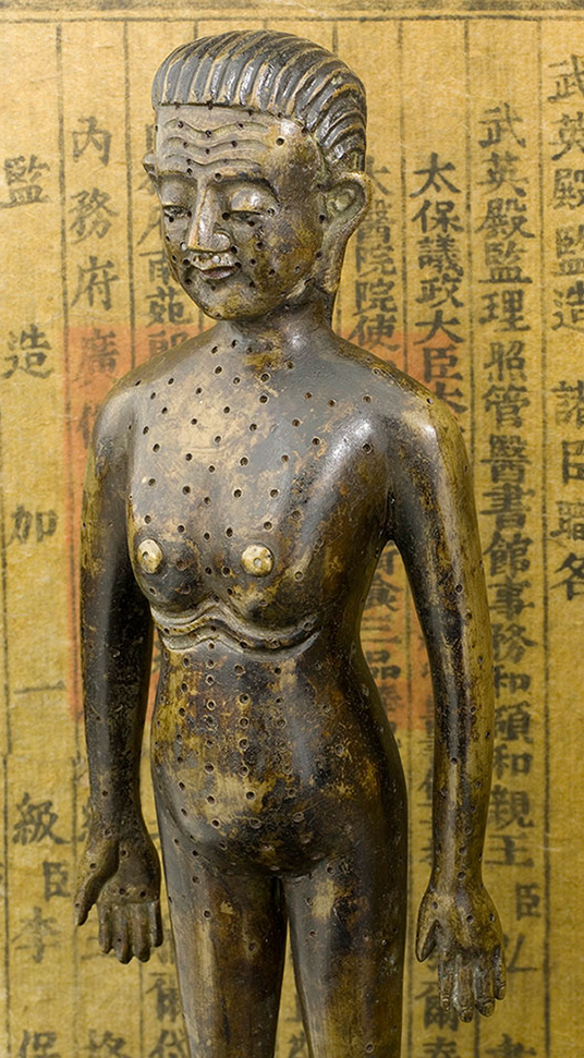 akupunktura, punkty akupunkturowe, historia tradycyjnej medycyny chińskiej, tradycyjna medycyna chińska, figurka z brązu, model