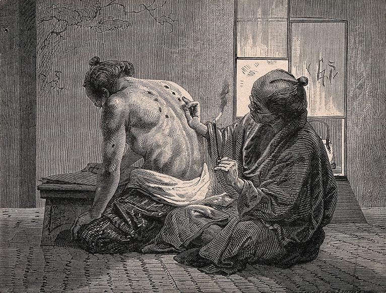 moksoterapia, historia tradycyjnej medycyny chińskiej, tradycyjna medycyna chińska