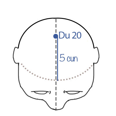 bezsenność, punkty akupunkturowe, punkty do moksoterapii
