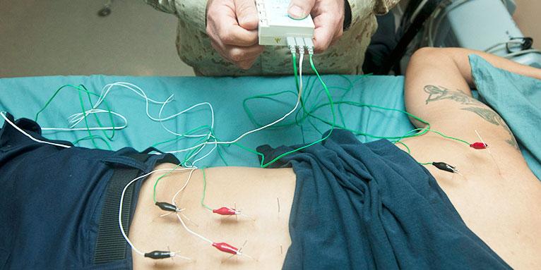 elektroakupunktura