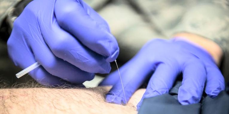 moksa, moksoterapia, moksowanie, termopunktura