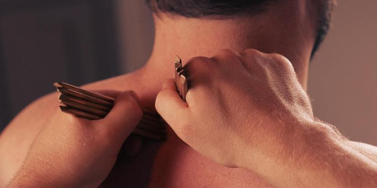 ból stawów, stawy, akupunktura