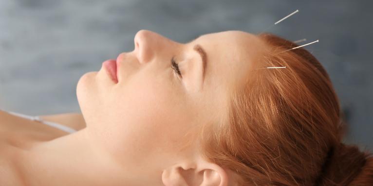 akupunktura czaszki