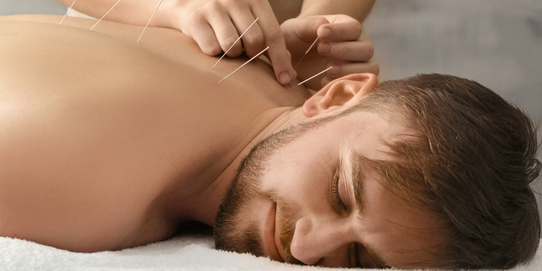 akupunktura w leczeniu bezsenności
