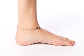 alergia, akupunktura, alergia wiosenna, stopa, punkt akupunkturowy