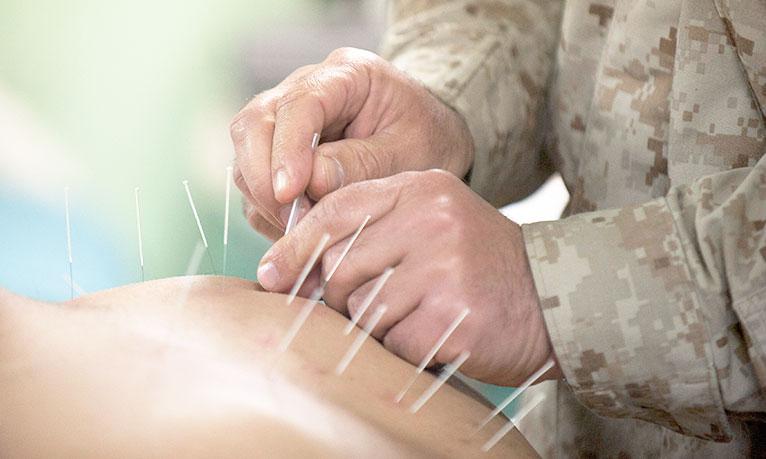 akupunktura, stres